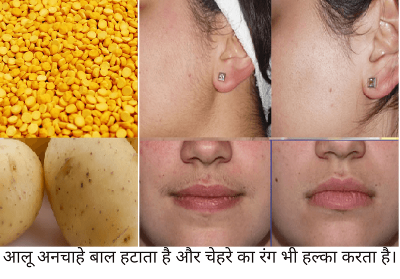 potato and lentil mask hindi