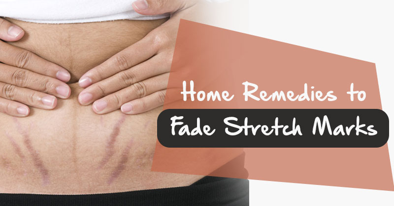 how to avoid stretch marks during pregnancy home remedies