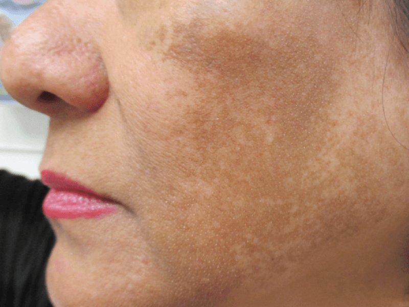 Hormone facial skin discoloration — photo 15